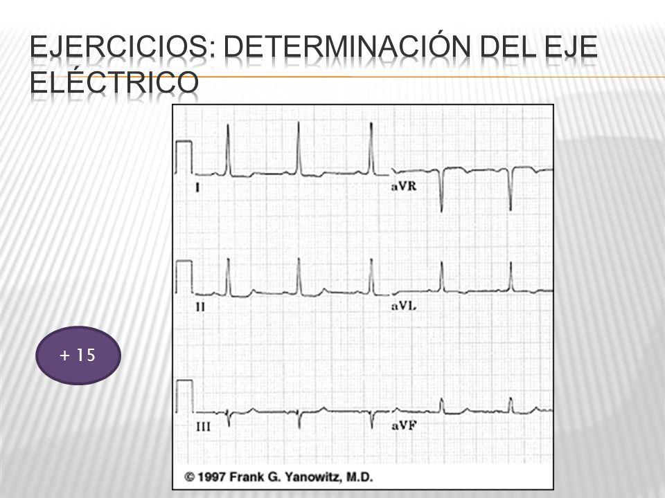 Ejercicios: Determinación del eje eléctrico