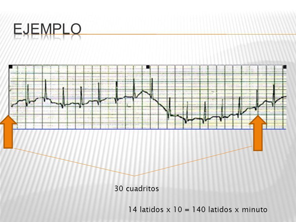 Ejemplo 30 cuadritos 14 latidos x 10 = 140 latidos x minuto