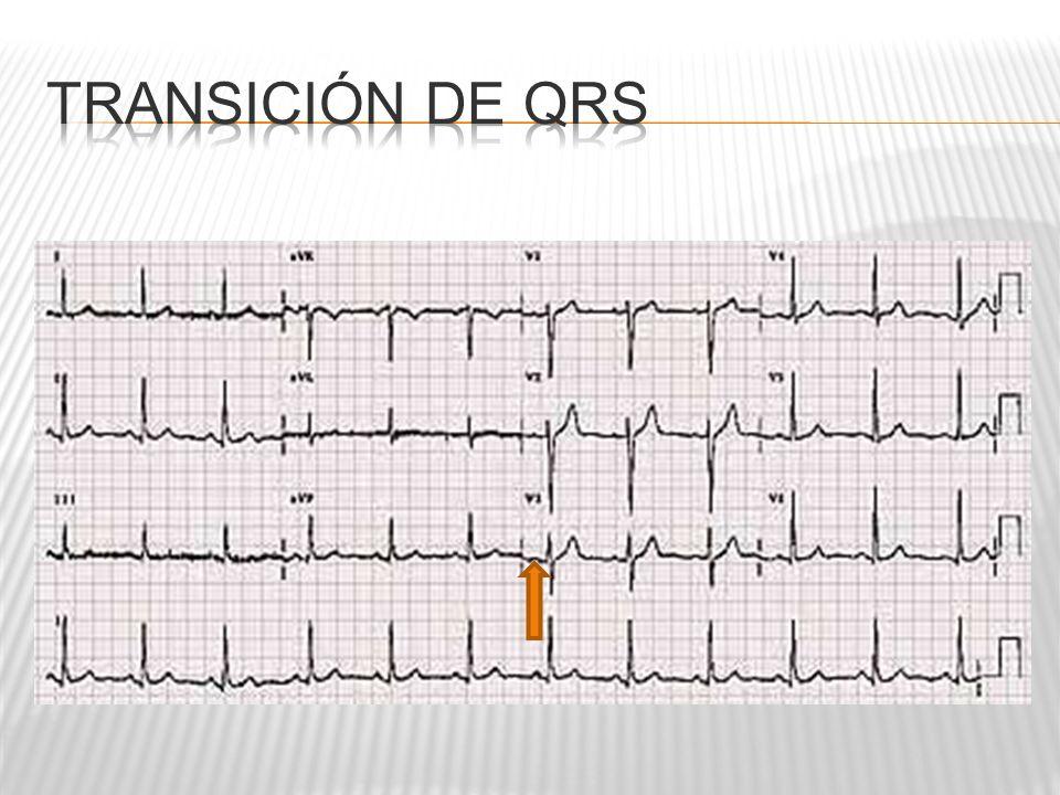 Transición de QRS