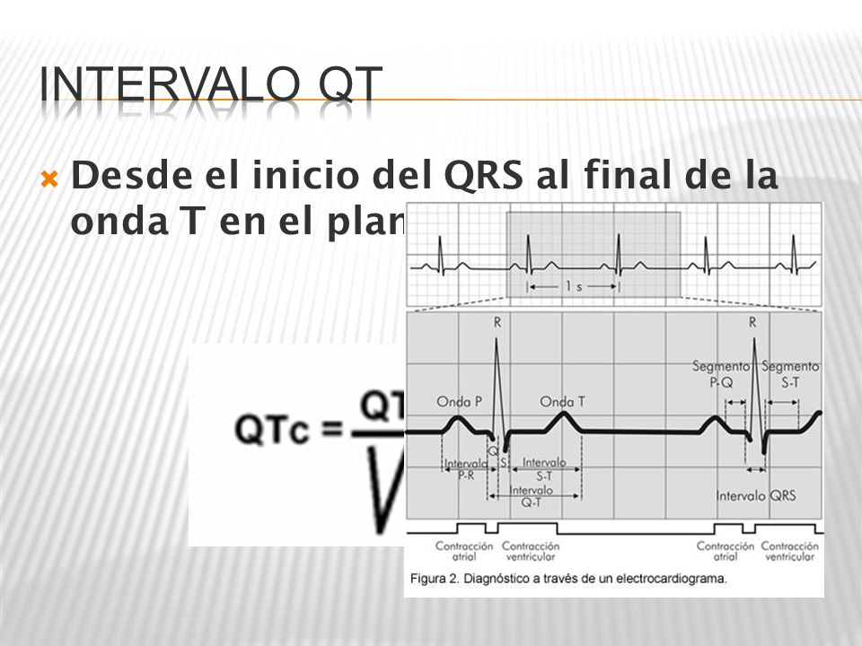 Intervalo QT Desde el inicio del QRS al final de la onda T en el plano frontal