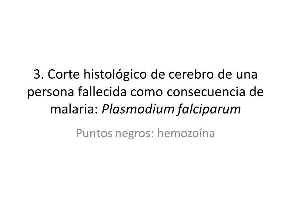 Puntos negros: hemozoína