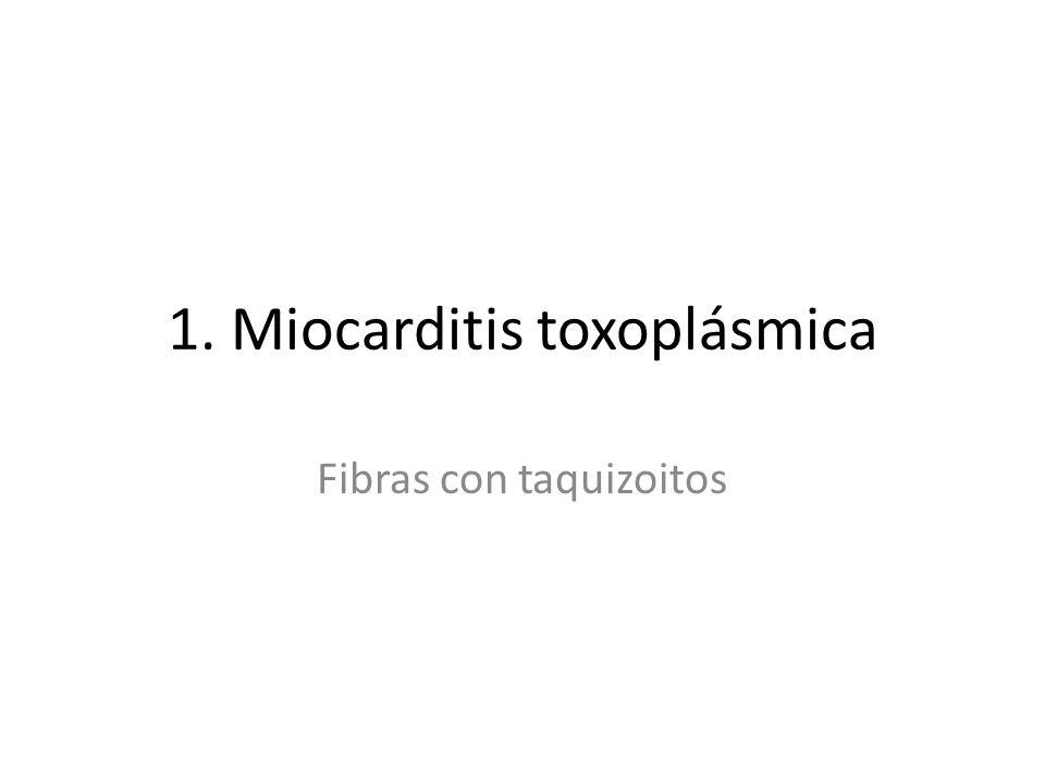 1. Miocarditis toxoplásmica