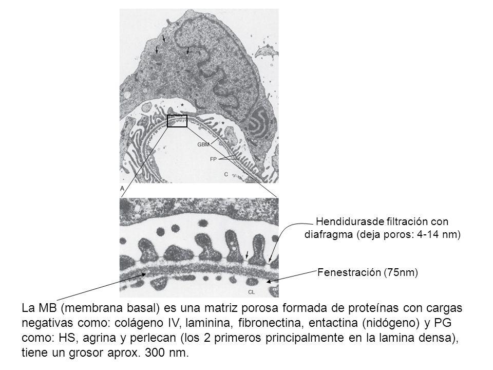 Hendidurasde filtración con diafragma (deja poros: 4-14 nm)