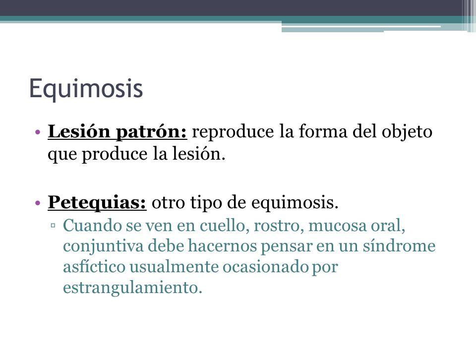 EquimosisLesión patrón: reproduce la forma del objeto que produce la lesión. Petequias: otro tipo de equimosis.