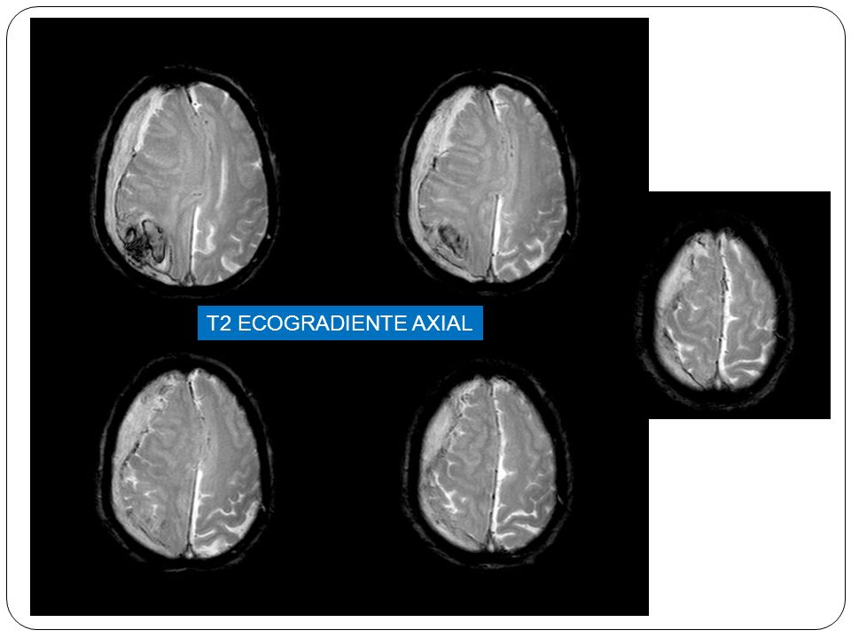T2 ECOGRADIENTE AXIAL