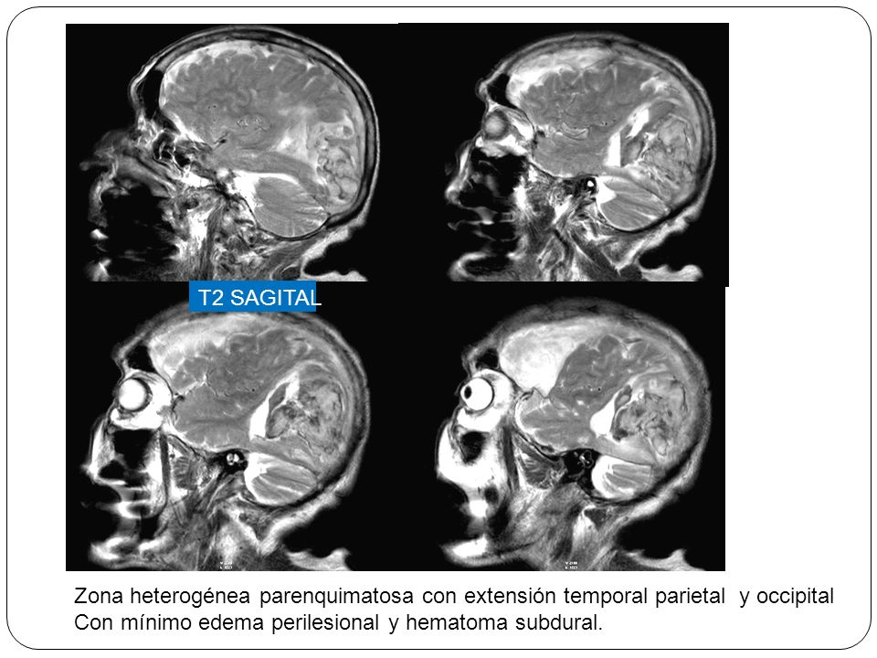 T2 SAGITAL Zona heterogénea parenquimatosa con extensión temporal parietal y occipital.