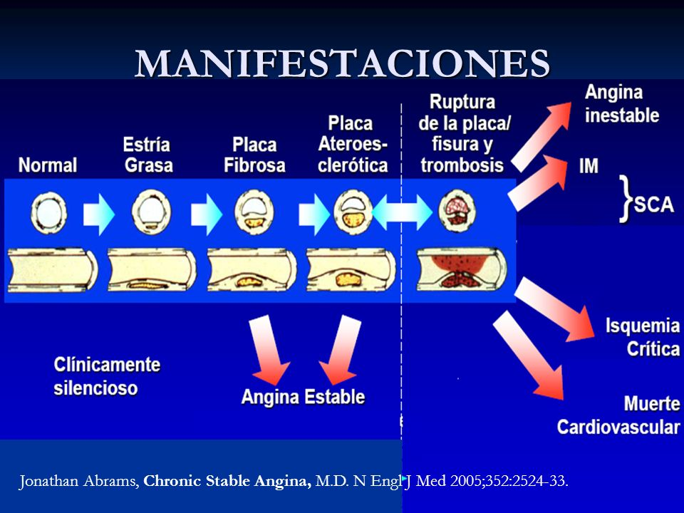 MANIFESTACIONES Jonathan Abrams, Chronic Stable Angina, M.D. N Engl J Med 2005;352:2524-33.