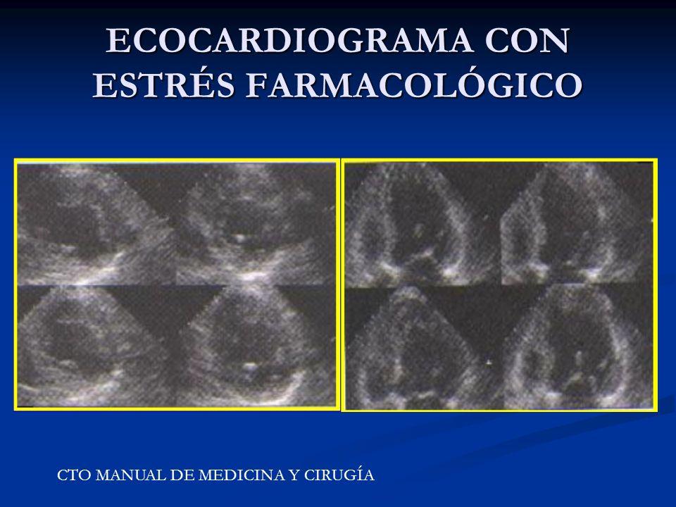 ECOCARDIOGRAMA CON ESTRÉS FARMACOLÓGICO