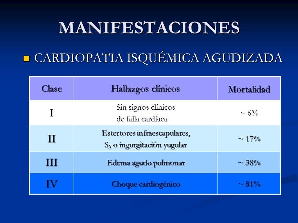MANIFESTACIONES CARDIOPATIA ISQUÉMICA AGUDIZADA I II III IV Clase
