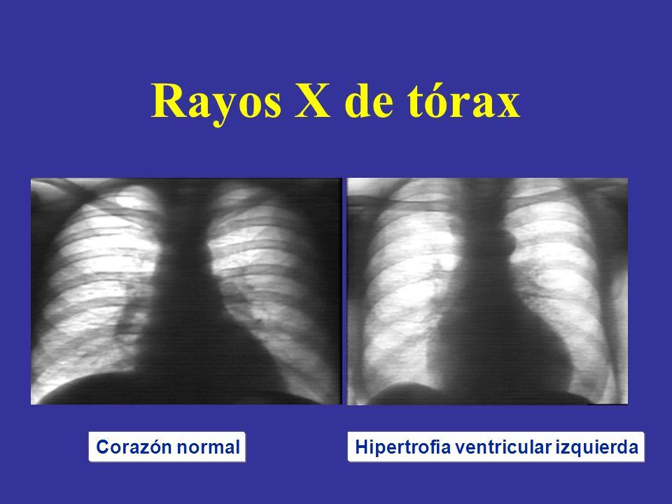 Hipertrofia ventricular izquierda
