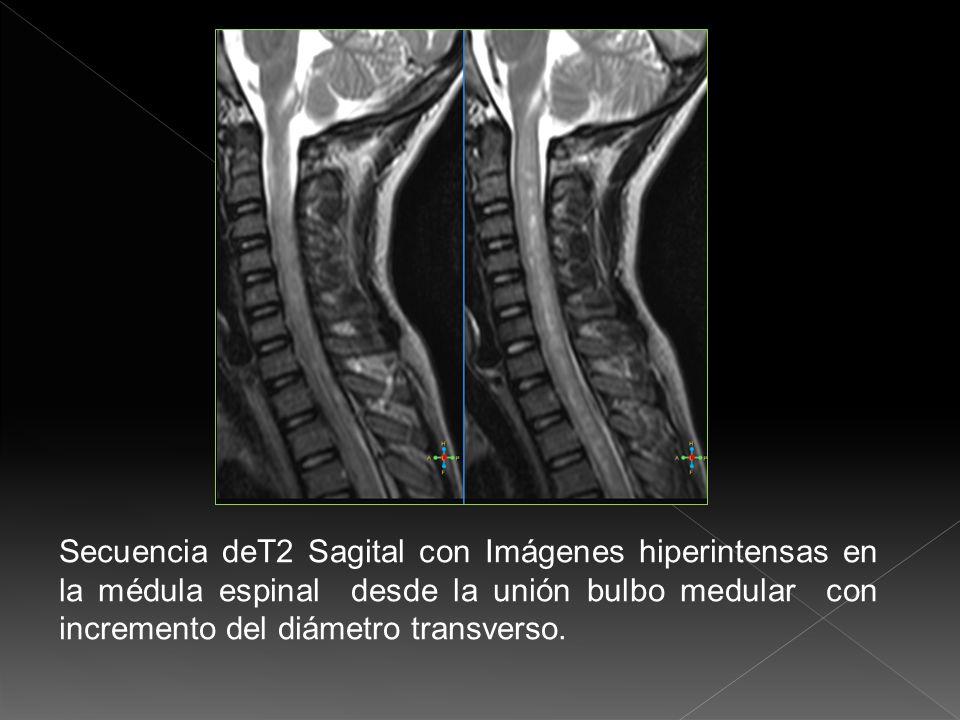 Secuencia deT2 Sagital con Imágenes hiperintensas en la médula espinal desde la unión bulbo medular con incremento del diámetro transverso.