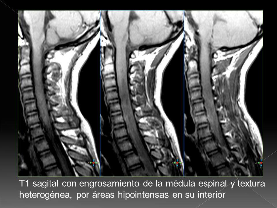 T1 sagital con engrosamiento de la médula espinal y textura heterogénea, por áreas hipointensas en su interior