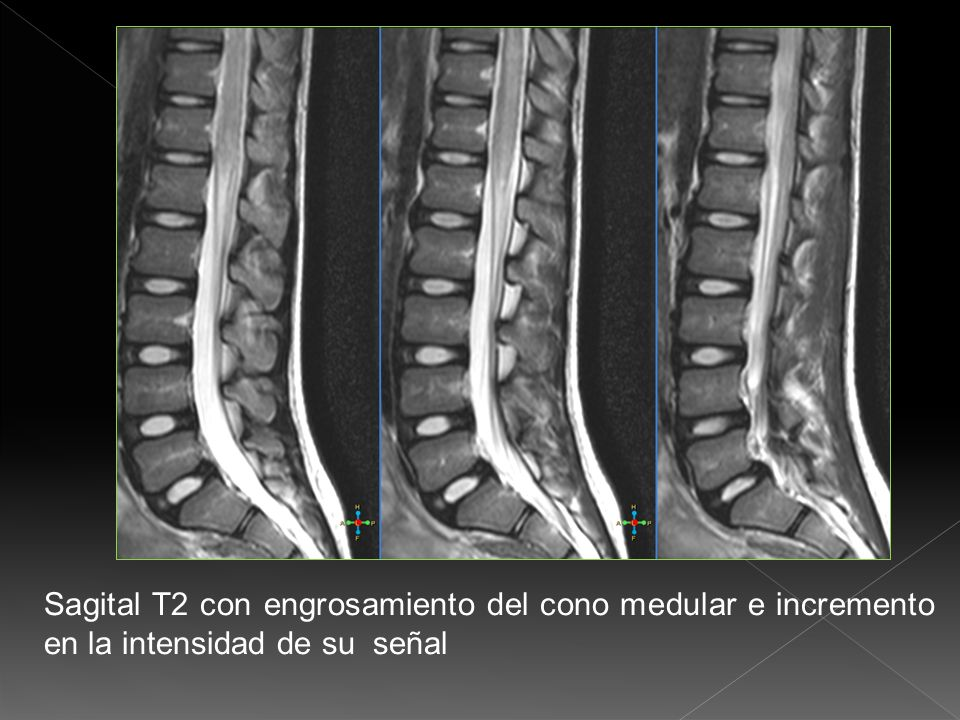 Sagital T2 con engrosamiento del cono medular e incremento en la intensidad de su señal