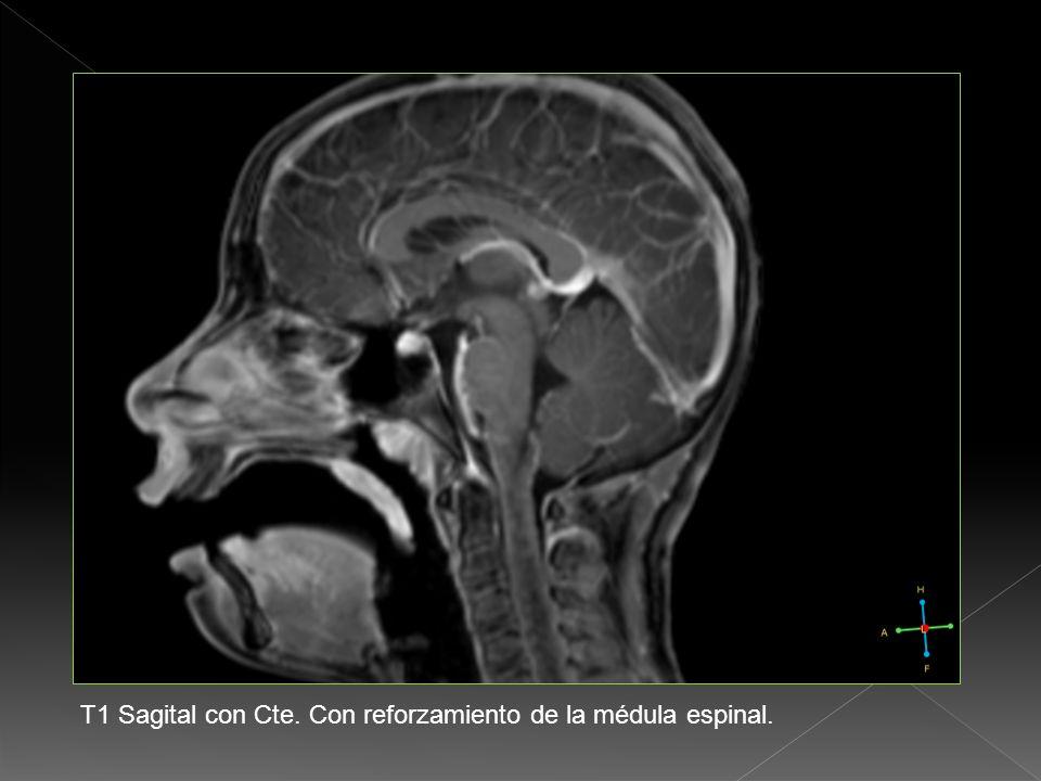 T1 Sagital con Cte. Con reforzamiento de la médula espinal.