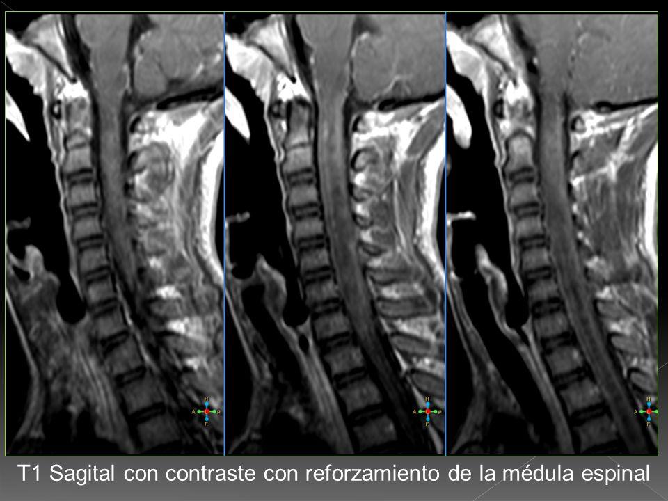 T1 Sagital con contraste con reforzamiento de la médula espinal