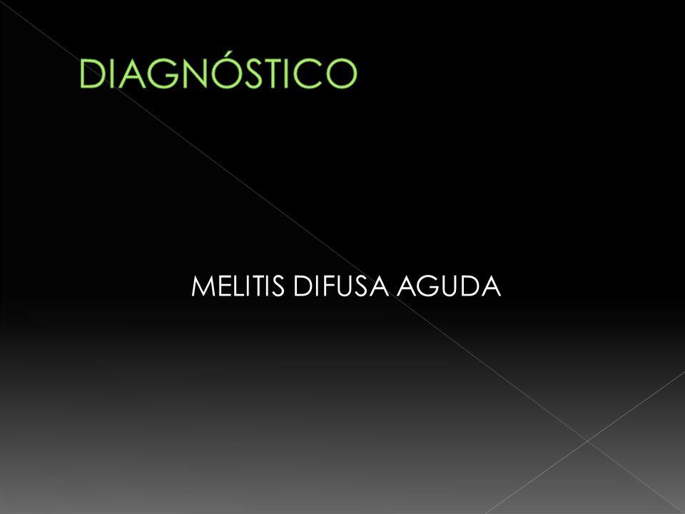 DIAGNÓSTICO MELITIS DIFUSA AGUDA