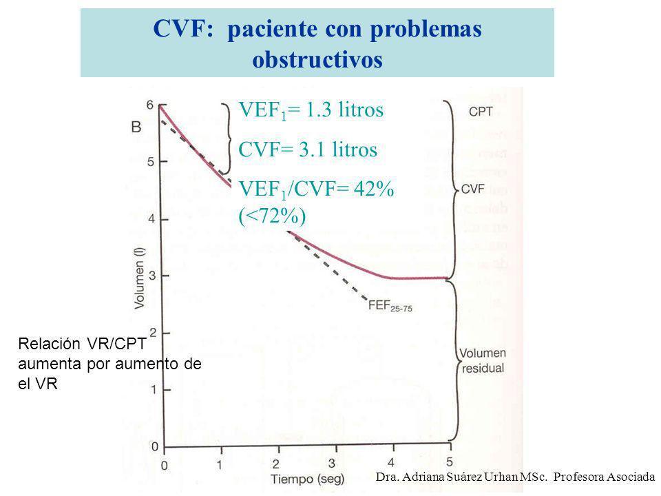 CVF: paciente con problemas obstructivos