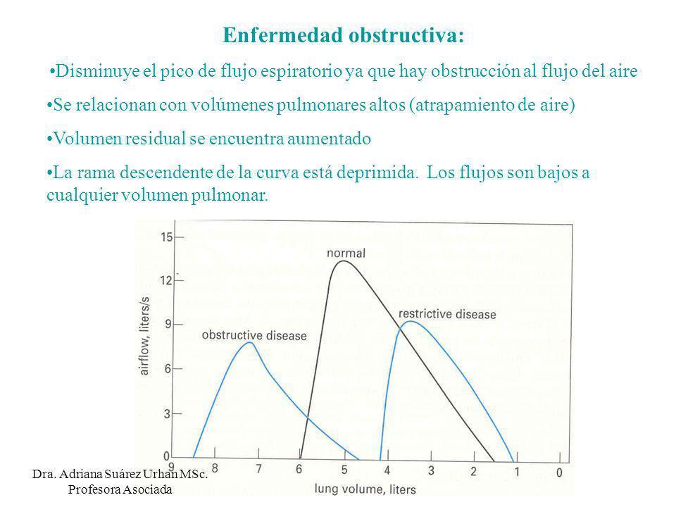 Enfermedad obstructiva: