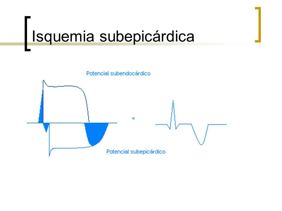 Isquemia subepicárdica