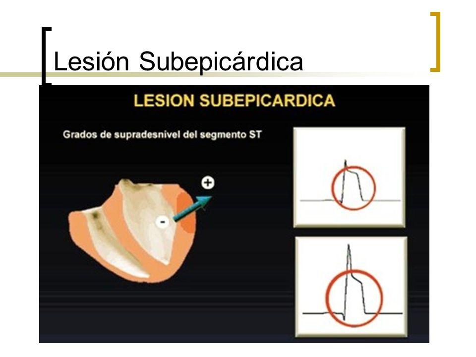 Lesión Subepicárdica