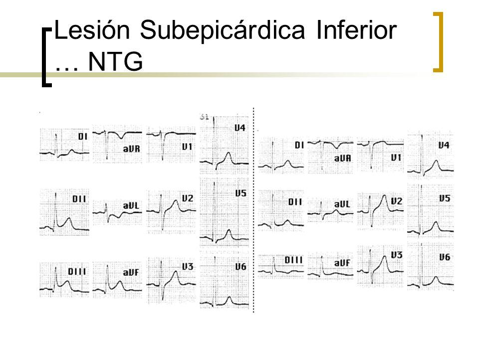 Lesión Subepicárdica Inferior … NTG