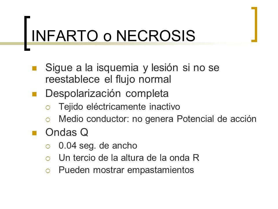 INFARTO o NECROSISSigue a la isquemia y lesión si no se reestablece el flujo normal. Despolarización completa.