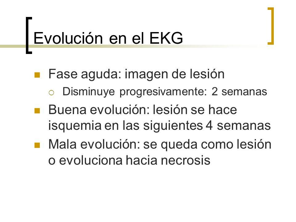 Evolución en el EKG Fase aguda: imagen de lesión