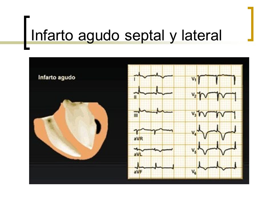 Infarto agudo septal y lateral