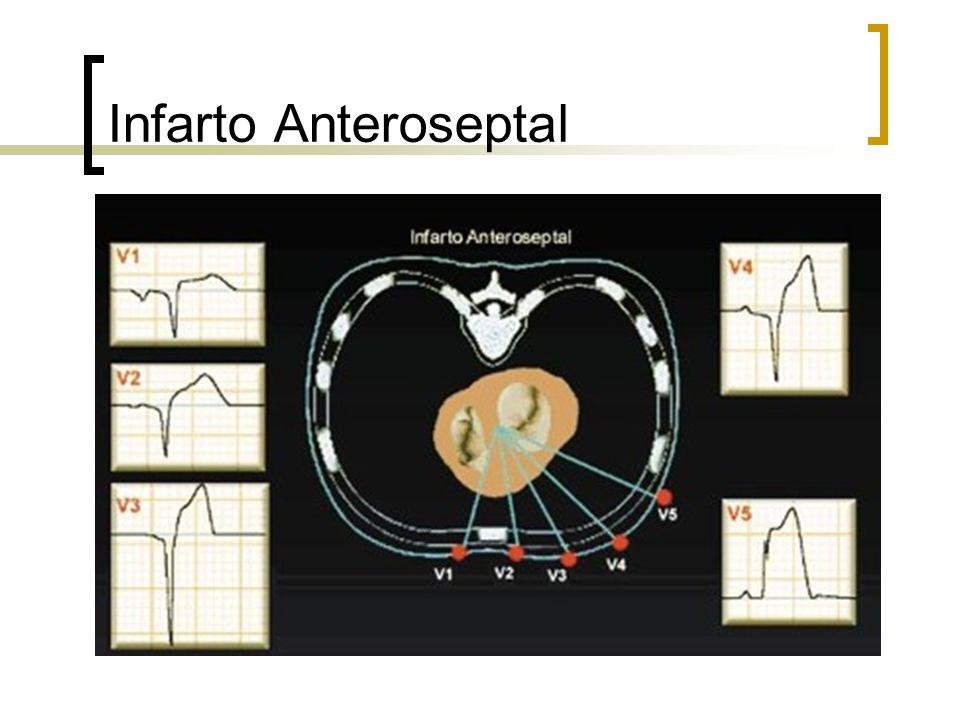 Infarto Anteroseptal
