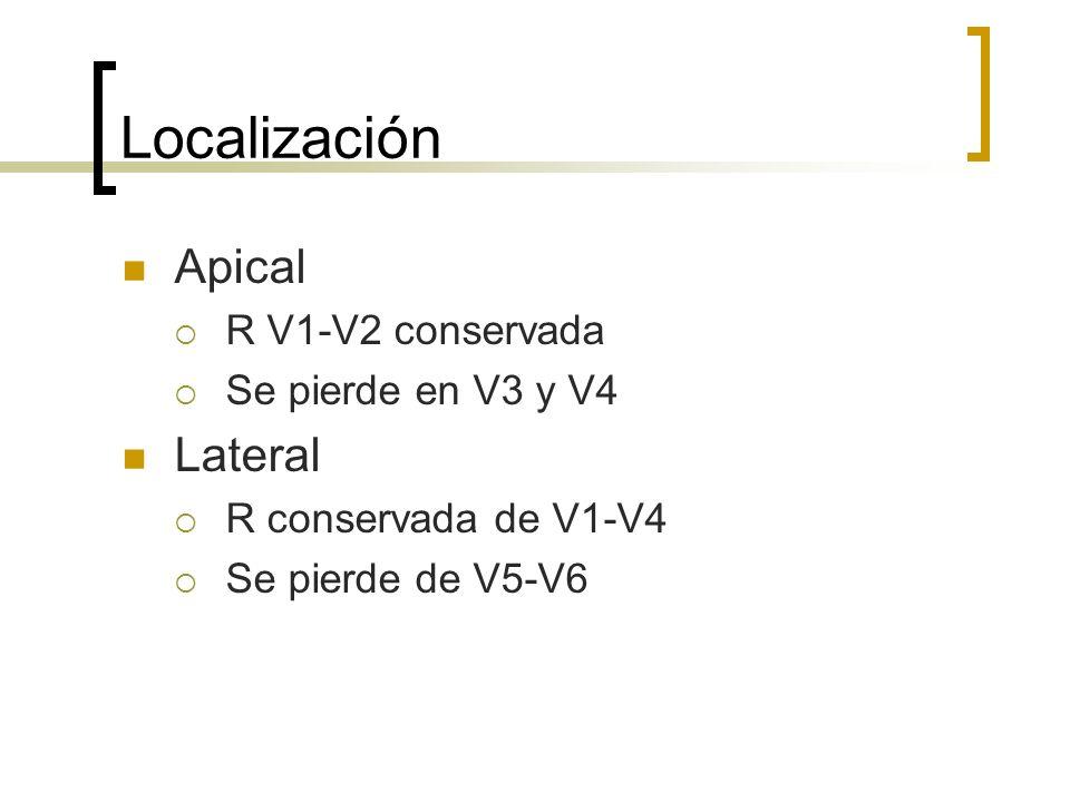 Localización Apical Lateral R V1-V2 conservada Se pierde en V3 y V4