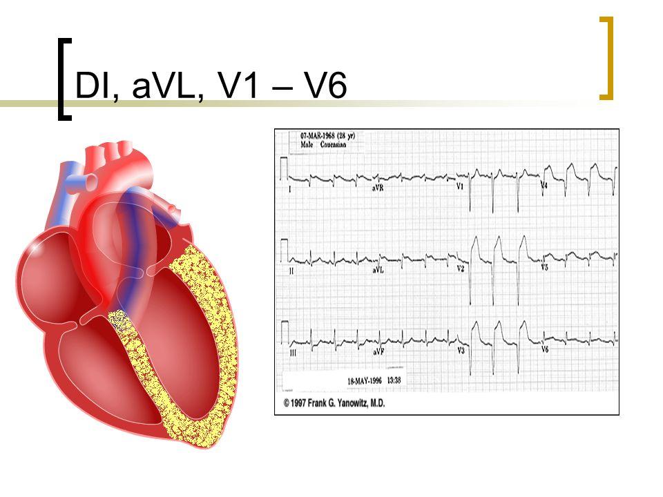 DI, aVL, V1 – V6