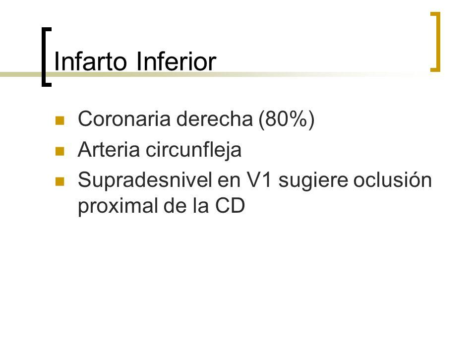 Infarto Inferior Coronaria derecha (80%) Arteria circunfleja