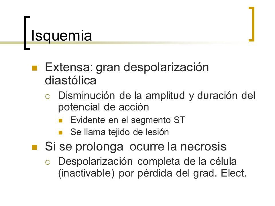 Isquemia Extensa: gran despolarización diastólica