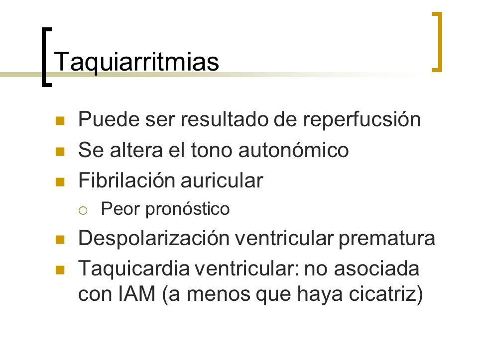 Taquiarritmias Puede ser resultado de reperfucsión