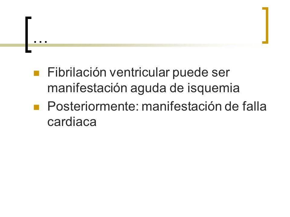 … Fibrilación ventricular puede ser manifestación aguda de isquemia