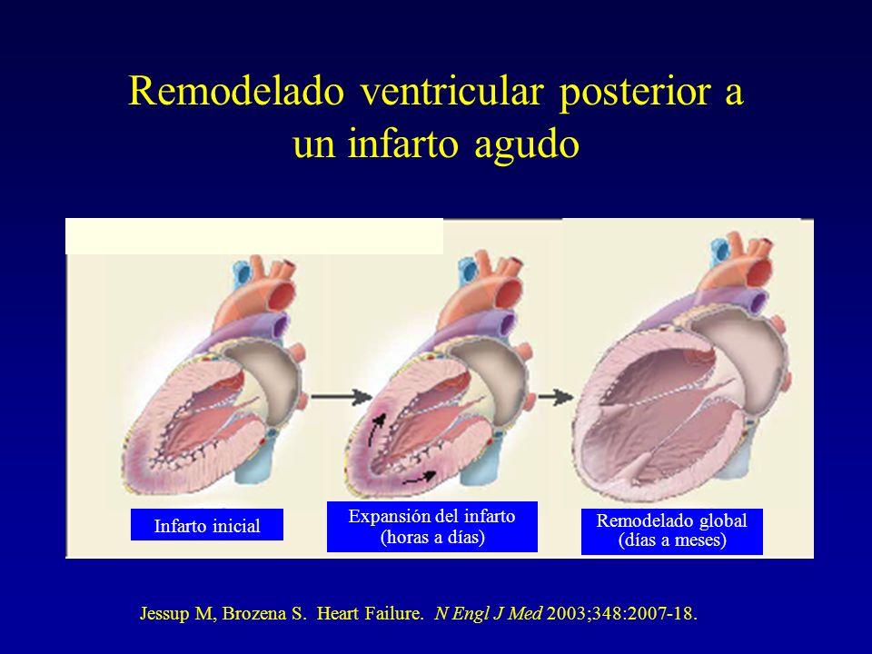 Remodelado ventricular posterior a un infarto agudo