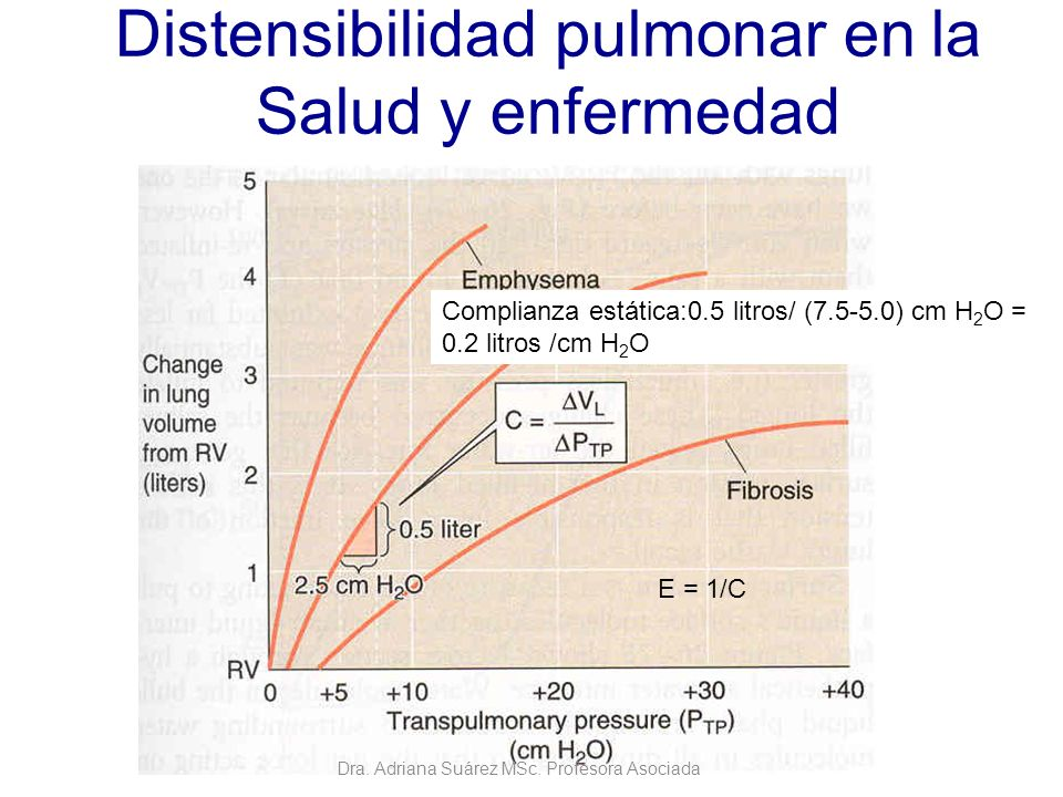 Distensibilidad pulmonar en la Salud y enfermedad