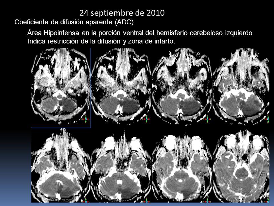 24 septiembre de 2010 Coeficiente de difusión aparente (ADC)