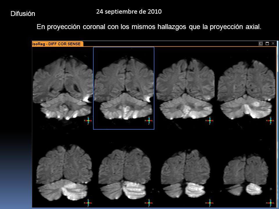 24 septiembre de 2010 Difusión.