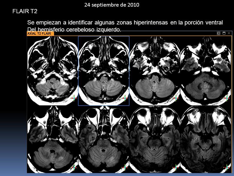 24 septiembre de 2010 FLAIR T2. Se empiezan a identificar algunas zonas hiperintensas en la porción ventral.