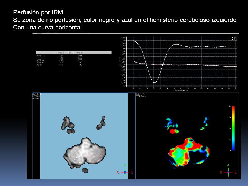Perfusión por IRM Se zona de no perfusión, color negro y azul en el hemisferio cerebeloso izquierdo.