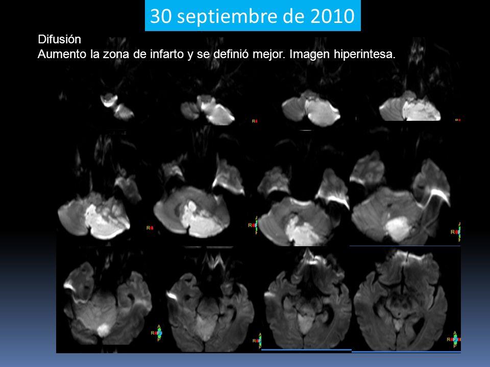 30 septiembre de 2010 Difusión