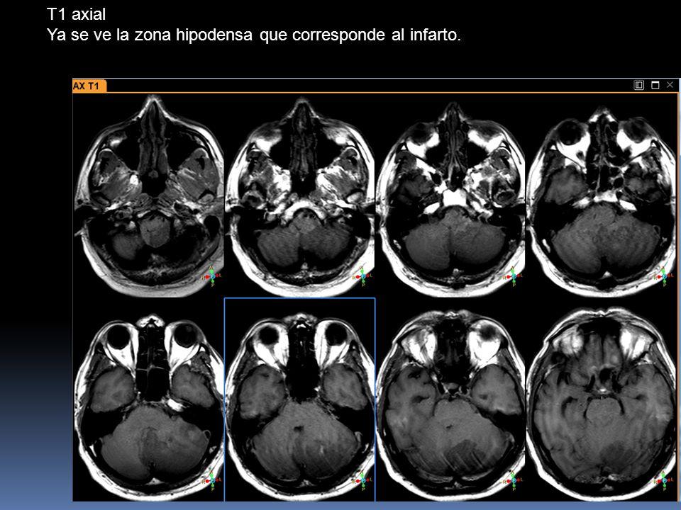 T1 axial Ya se ve la zona hipodensa que corresponde al infarto.
