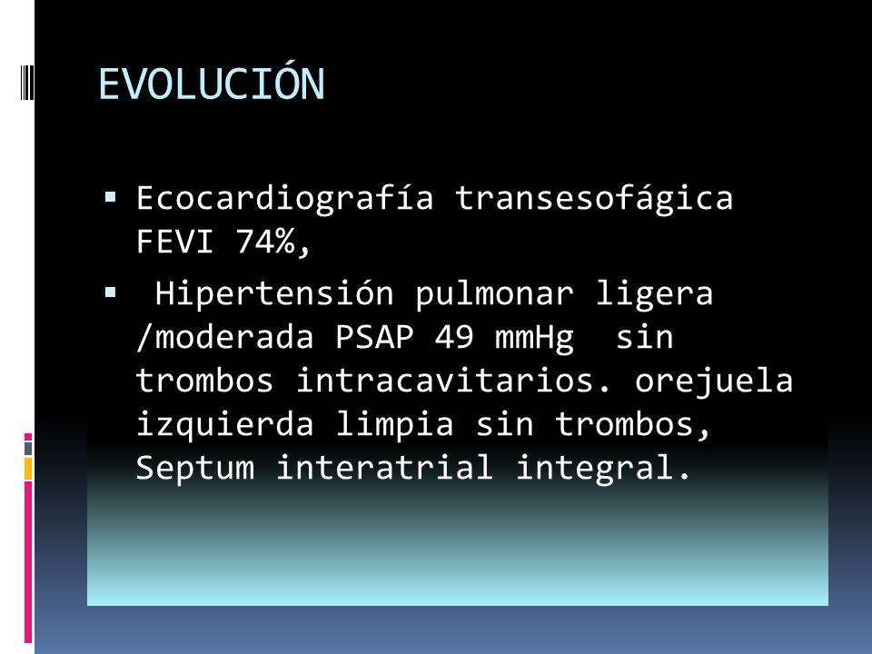 EVOLUCIÓN Ecocardiografía transesofágica FEVI 74%,