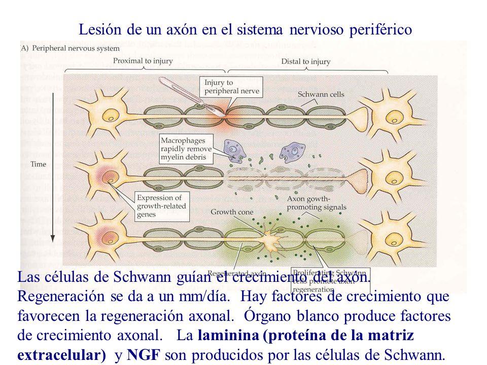 Lesión de un axón en el sistema nervioso periférico