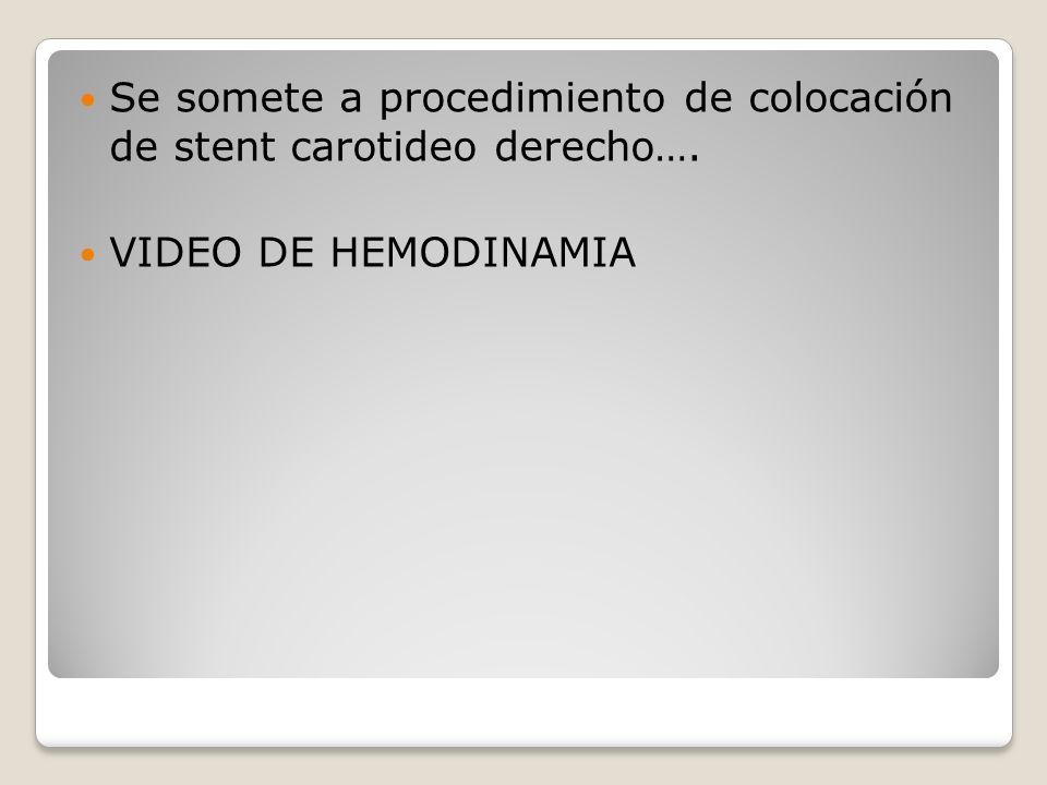 Se somete a procedimiento de colocación de stent carotideo derecho….