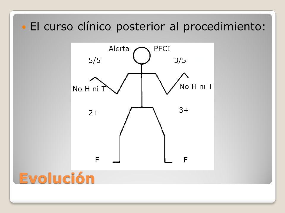 Evolución El curso clínico posterior al procedimiento: Alerta PFCI 5/5