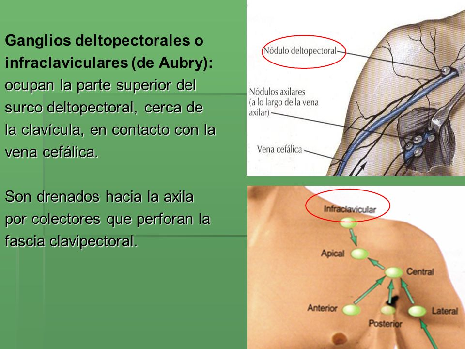 Ganglios deltopectorales o
