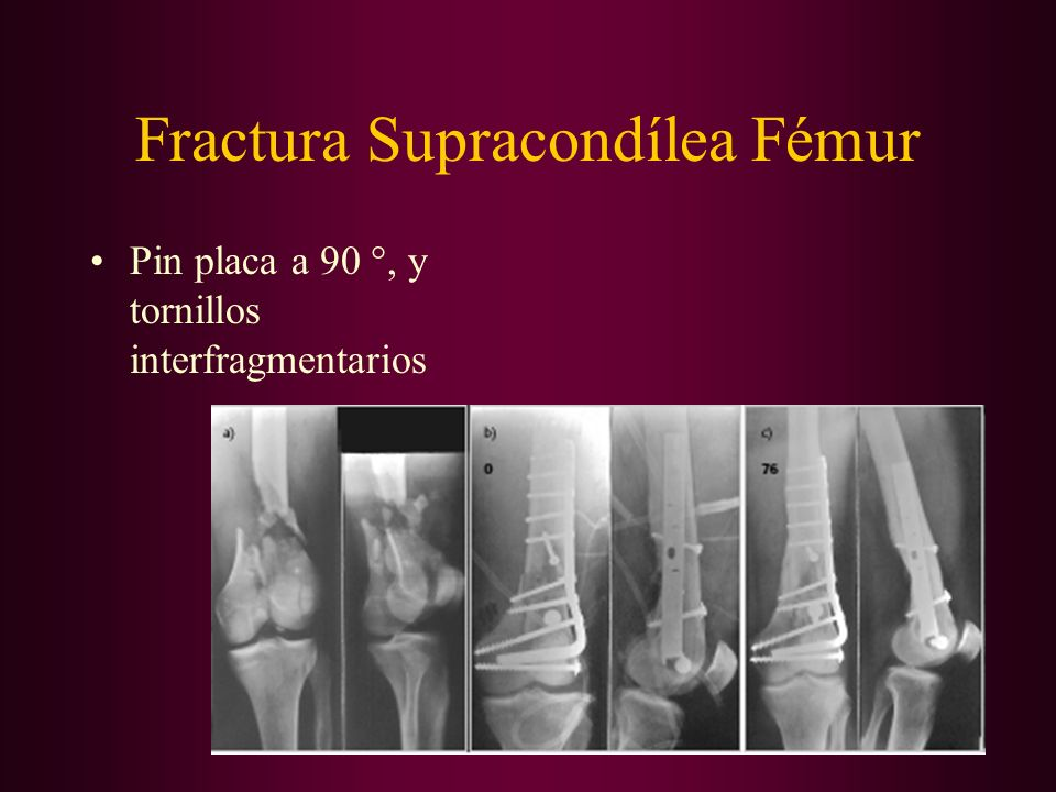 Fractura Supracondílea Fémur