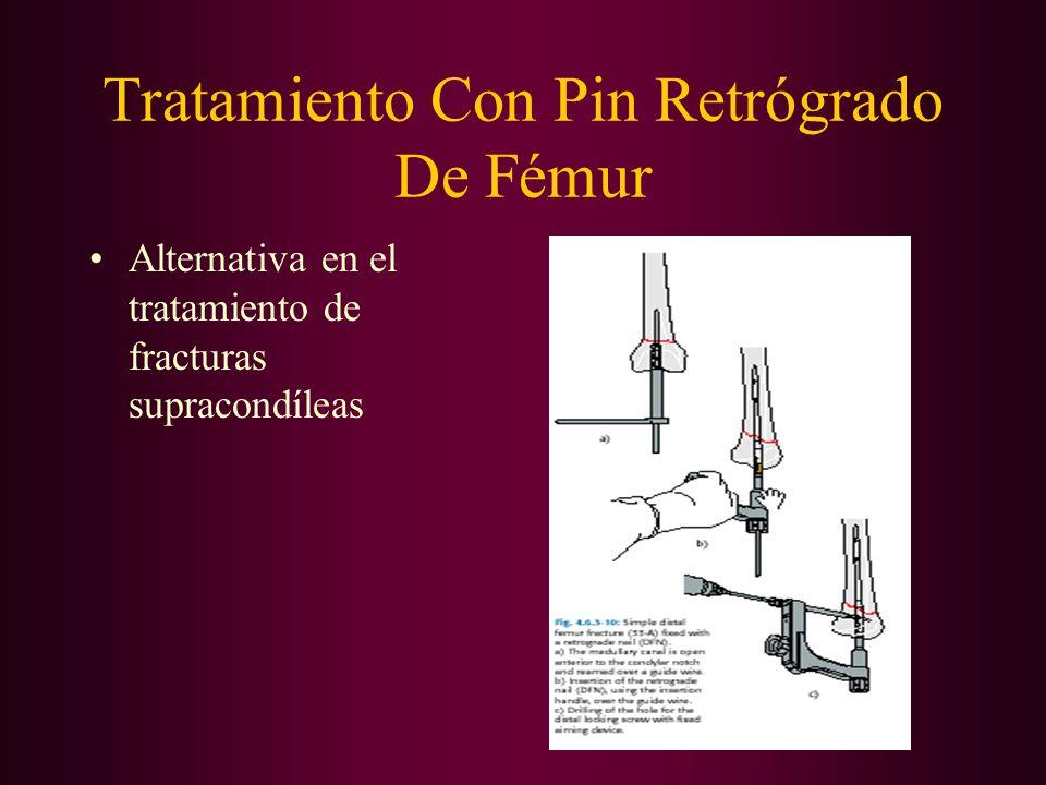 Tratamiento Con Pin Retrógrado De Fémur